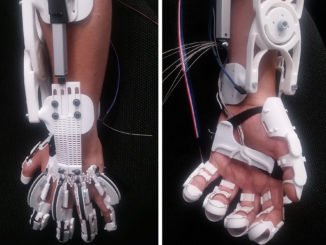Dank einer neuartigen Exoskelett-Hand können Menschen, die eine gelähmte Hand haben, wieder ihre Hand bewegen. mz im Interview.